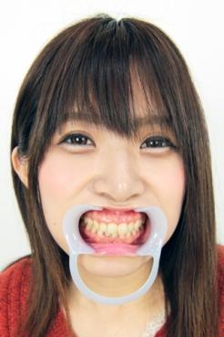 【歯観察】喜多方涼ちゃん(25歳)画像22枚!